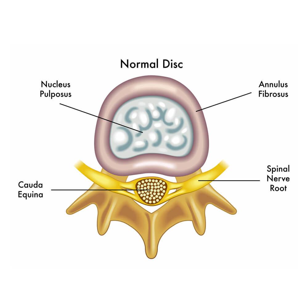 Disc Herniation - RennWellness
