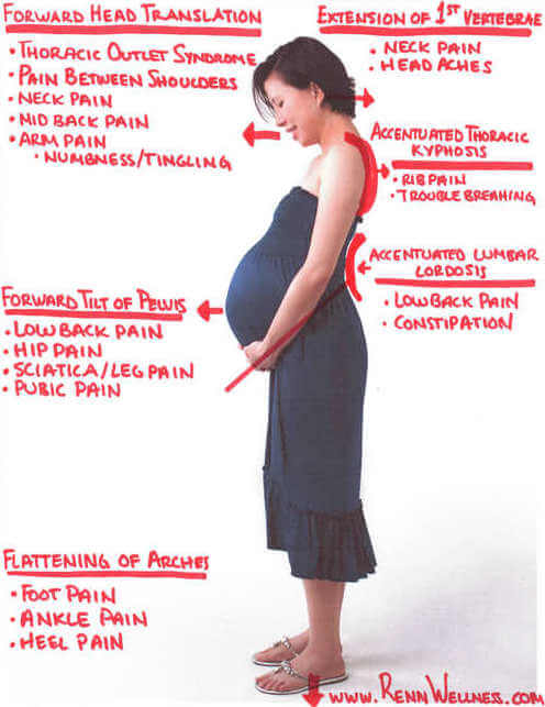Prenatal Chiropractor in Andersonville illustrates postural imbalances that occur during pregnancy